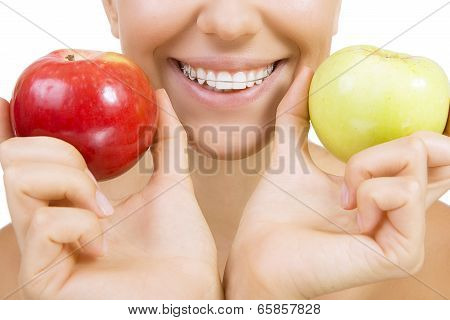 Smiling Girl With Retainer For Teeth And Apple, Isolated On White