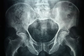 picture of rectum  - Xray of a male pelvic it - JPG