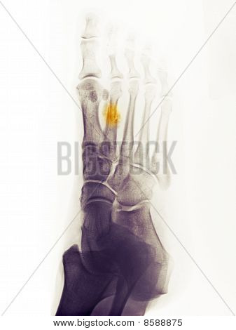 X-ray Of The Foot Of A 44 Year Old Woman Showing A Healing Fracture Of The 2Nd Metatarsal.