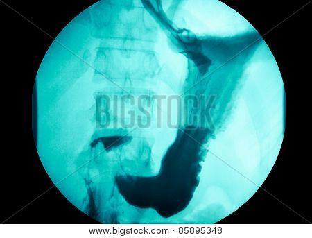 Intestinal Abdominal Xray