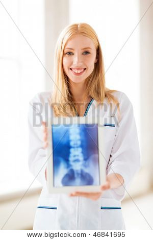 bright picture of female doctor with x-ray on tablet pc