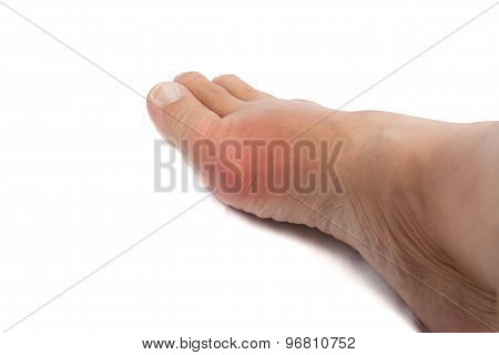 Painful gout inflammation on big toe joint of the foot