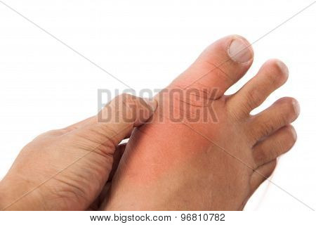 Hand embracing foot with deformed right toe due to painful gout inflammation