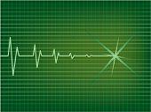 pic of ekg  - Heart is slowing down on EKG monitor - JPG