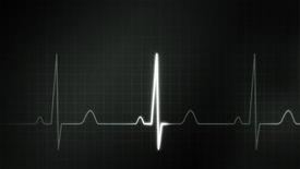 stock photo of ekg  - The graphic of EKG monitor for medical theme - JPG