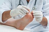 image of chiropodist  - Doctor dermatologist examines the foot on the presence of athlete - JPG