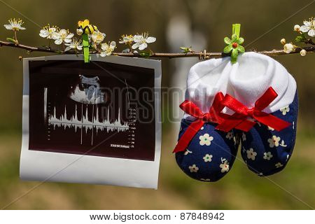 Baby Slippers And Ultrasound Image Hanging On A Branch Of Blossoming Tree