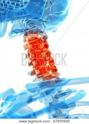 medically accurate illustration - painful cervical spine