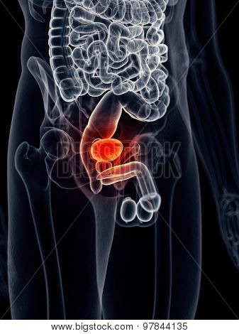 medically accurate illustration - painful bladder