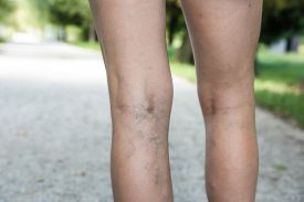 picture of varicose  - Painful varicose and spider veins on womans legs who is active and working out self - JPG