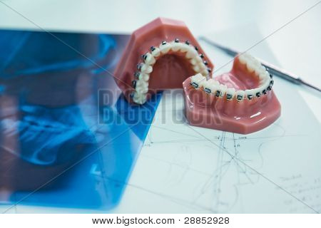 orthodontic tools and xray in laboratory