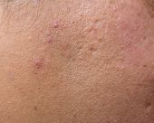 picture of scars  - Woman with oily skin and acne scars - JPG