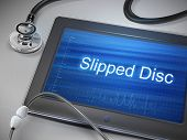 stock photo of spinal disc  - slipped disc words displayed on tablet with stethoscope over table - JPG