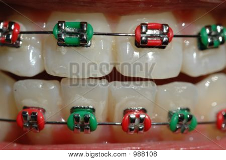 Colourful Braces