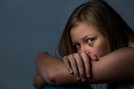 stock photo of bruises  - Scared and worried young girl with heavy bruising around eye - JPG