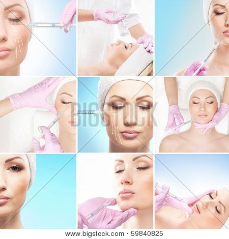 Collage of some different images with injections and face lifting treatment