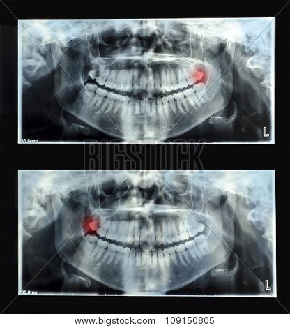 Panoramic Dental X-ray  With Superior Upper Wisdom Tooth (eight Tooth) Shown Red