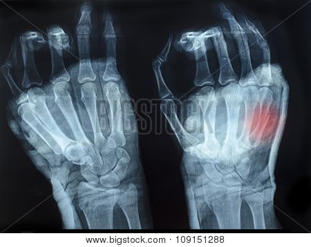 X-ray Image Of Human Hands With Top Hand Shown Red