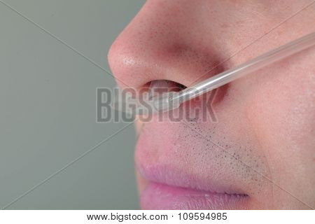 Nasal Catheter In A Patient