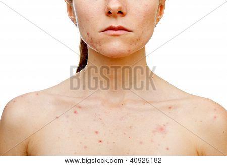 Problemas de la piel