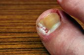 image of scabs  - Ingrown toenail disease blood wound infection bacteria finger skin scab pus toe liquid whitlow felon treatment swelling on a brown table background - JPG