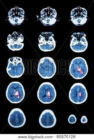 Hemorrhagic Stroke .  Ct Scan (computed Tomography) Of Brain