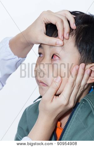 Pinkeye (conjunctivitis) Infection On A Boy, Doctor Check Up Eye Patient
