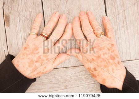 Sign Of Aging - Plenty Of Freckles On Woman Hand