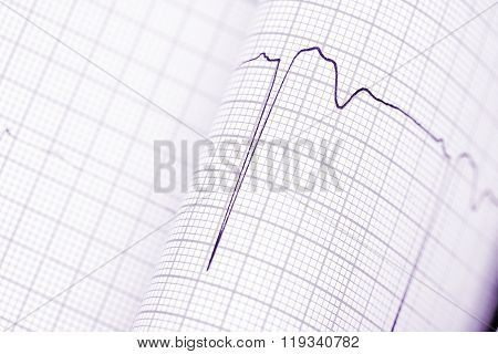 Folded Graph Paper With Ecg