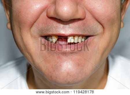 Man Smile Without Teeth