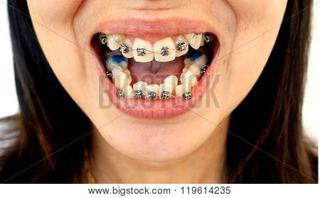 Diamond Braces For Teeth
