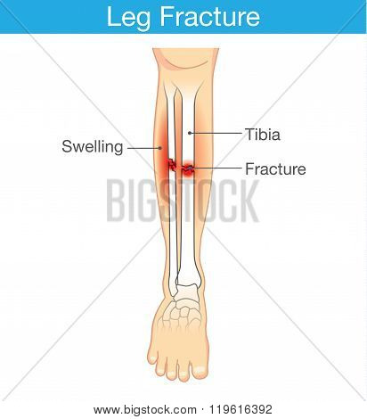 Diagram of leg have bone fracture.