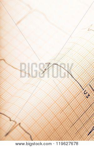 Retro Styled Ecg Paper Background