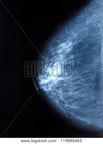 X-ray Image Of Breast Mammogram Woman