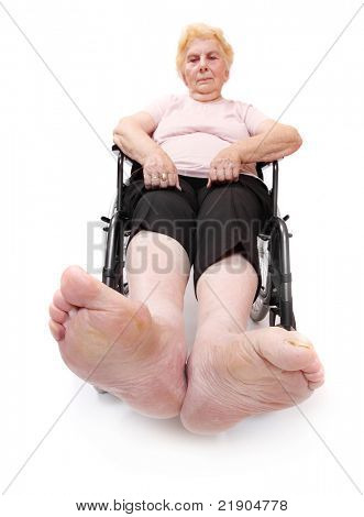 Legs disease of an elderly paraplegic woman sitting in a wheelchair. Immobility metaphor. Close up with shallow DOF.
