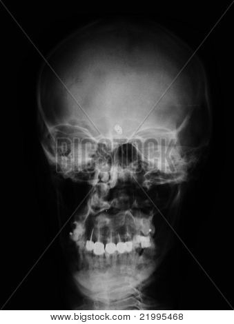 x-ray/ rtg of human head with pathology