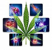 Cannabis For Treating Joint Pain And Medical Marijuana As Medicine To Heal As A Natural Medicinal Tr poster
