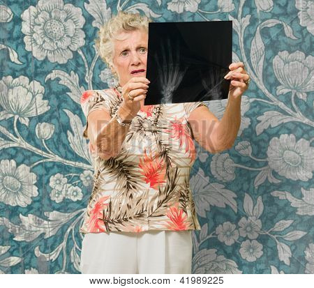 Senior Woman Holding X Ray Report On Wallpaper