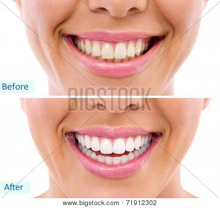 whitening - bleaching treatment ,before and after ,woman teeth and smile, close up, isolated on white