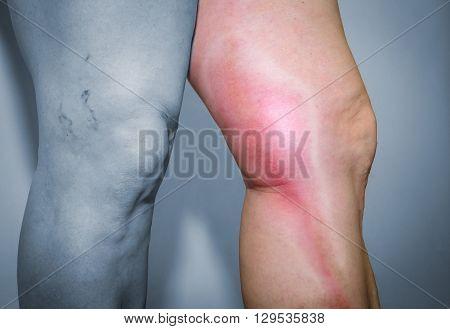 Thrombophlebitis In Human Leg