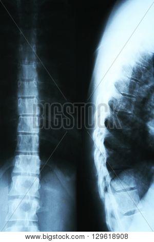 X-ray of human spinal column closeup