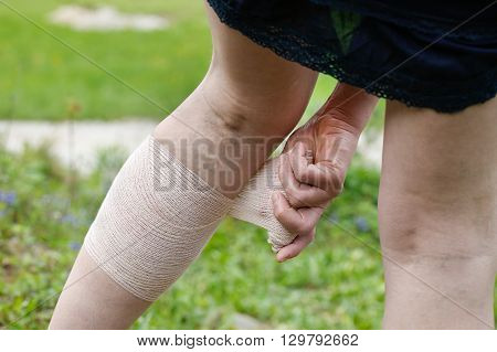 Woman with painful varicose and spider veins on her legs applying compression bandage self-helping herself. Vascular disease varicose veins problems painful unaesthetic medical condition concept.