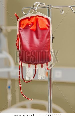 a blood bag for infusion into a clinic. donor blood is administered.