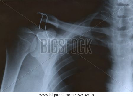 X-ray Of Shoulder With Wire