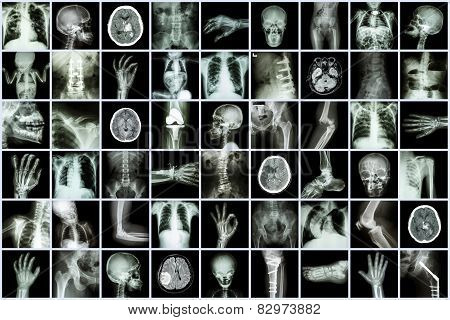 X-ray Multiple Part Of Adult And Child And Disease