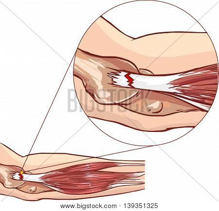 Tennis elbow - tear in the common extensor tendon of the arm