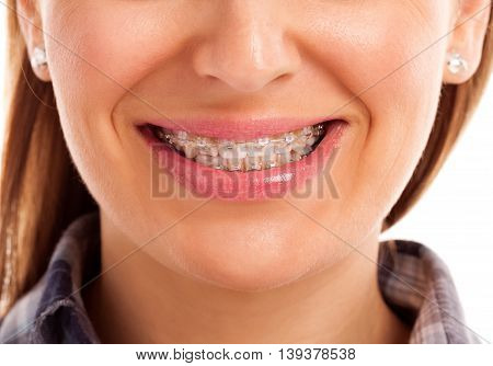 Mouth care teeth with braces isolated close up