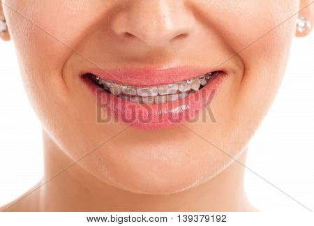woman face with denture isolated close up