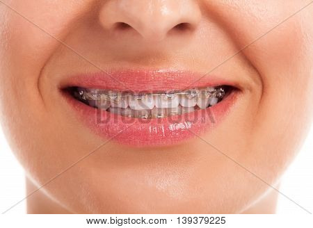 Showing White Teeth With Braces