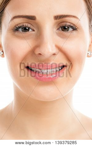 Attractive girl teeth with braces, health concept